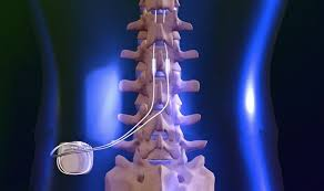 spinal stimulation, for chronic pain and balance