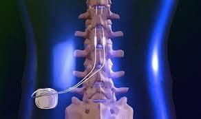 spinal stimulator