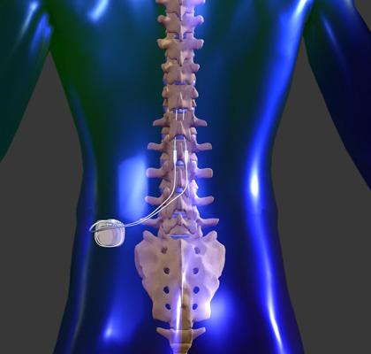 spinal cord stimulator 166,000.00 dollar conveyer belt